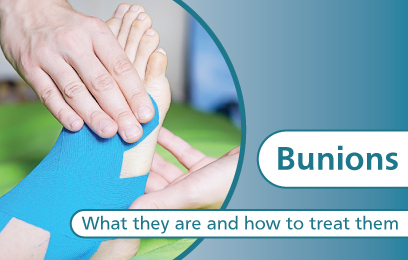Bunions - What they are and how to treat them