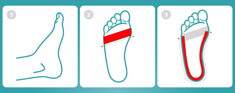 How to tape the foot for Plantar Fasciitis treatment